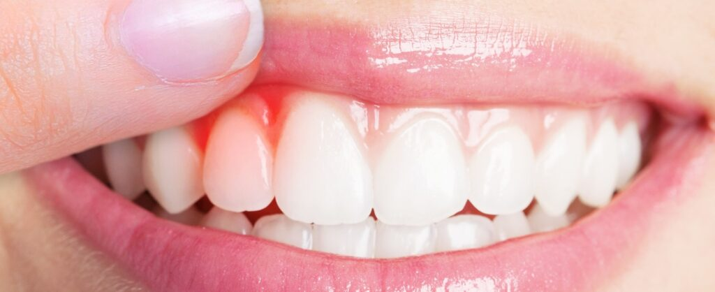 Periodontal Disease-Dentist in Atascadero
